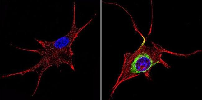 TIMP1 Antibody in Immunofluorescence (IF)