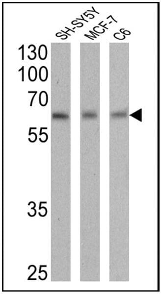 RARA Antibody in Western Blot (WB)