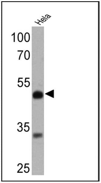 Rarb Antibody Monoclonal R Beta 28