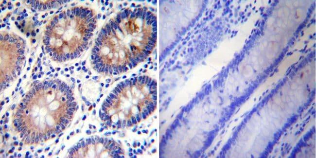 PLK1 Antibody in Immunohistochemistry (IHC)