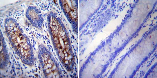 gamma Tubulin Antibody in Immunohistochemistry (IHC)
