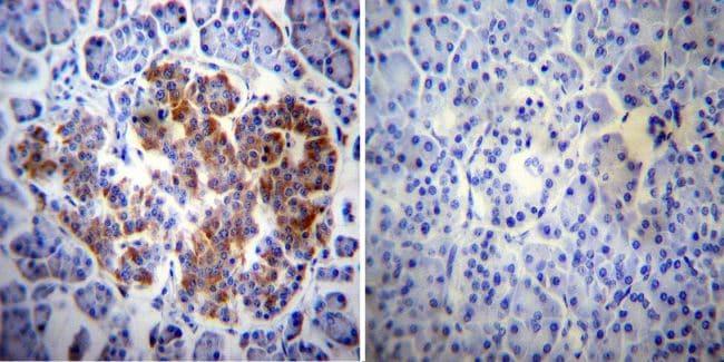 ErbB4 Antibody in Immunohistochemistry (IHC)
