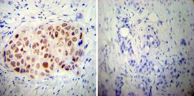 AP2 alpha Antibody in Immunohistochemistry (IHC)