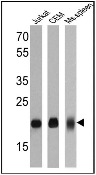CD3e Antibody in Western Blot (WB)
