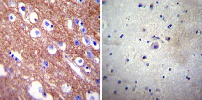 PMCA4 ATPase Antibody in Immunohistochemistry (IHC)