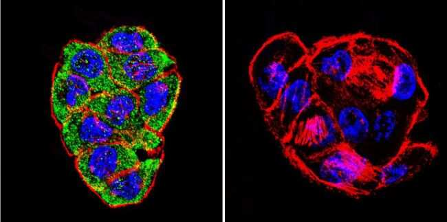CFTR Antibody in Immunofluorescence (IF)