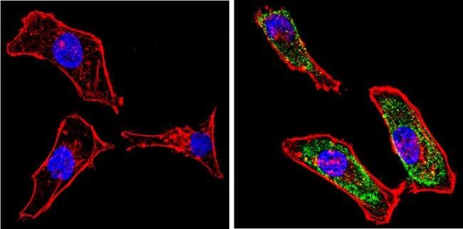 Galectin 3 Antibody in Immunocytochemistry (ICC/IF)