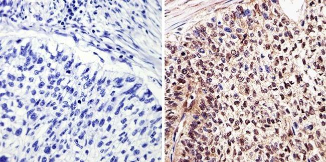 c-Myc Antibody in Immunohistochemistry (Paraffin) (IHC (P))