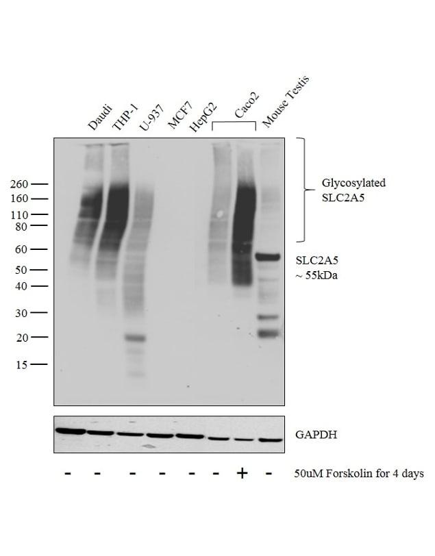 SLC2A5 Antibody in Western Blot (WB)
