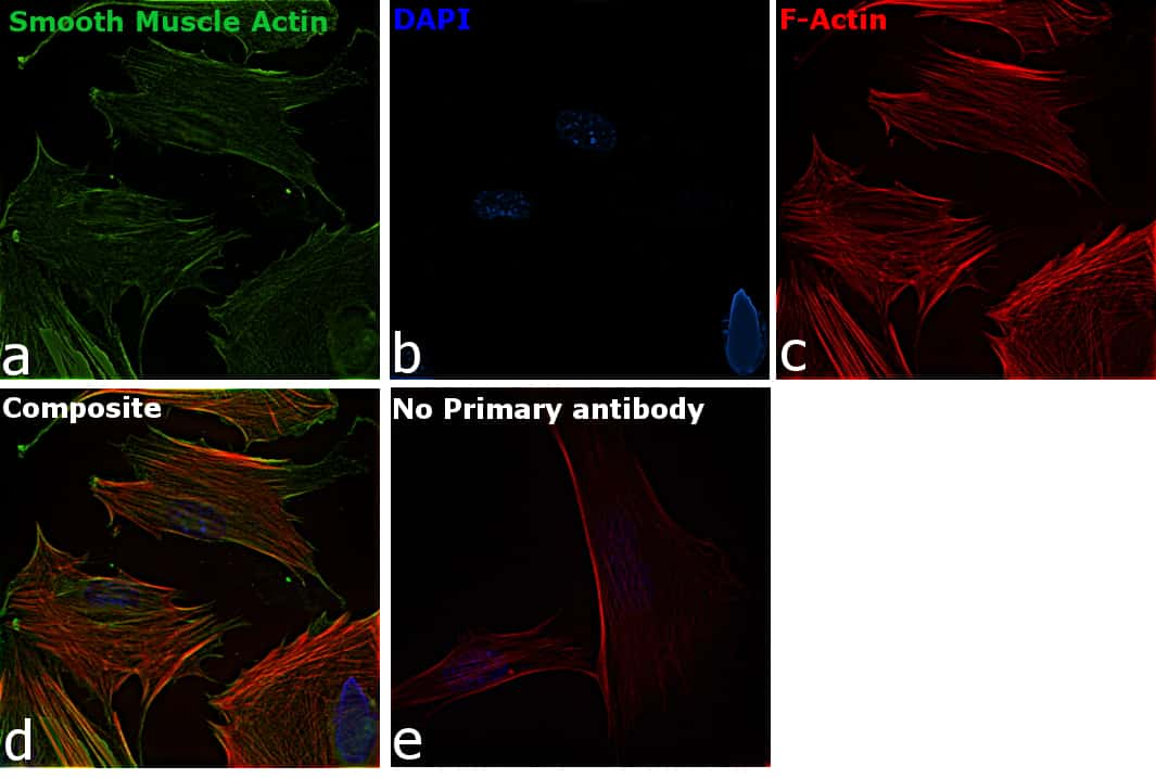 Alpha-Smooth Muscle Actin Antibody in Immunofluorescence (IF)