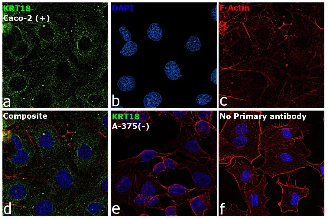Cytokeratin 18 Antibody in Relative expression