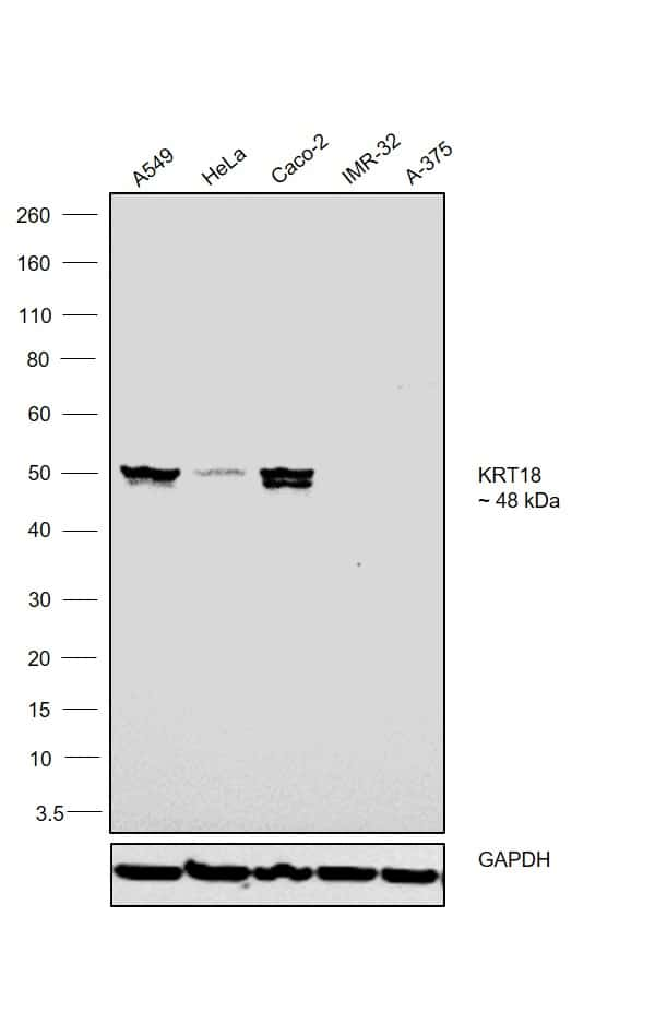 Cytokeratin 18 Antibody in Western Blot (WB)