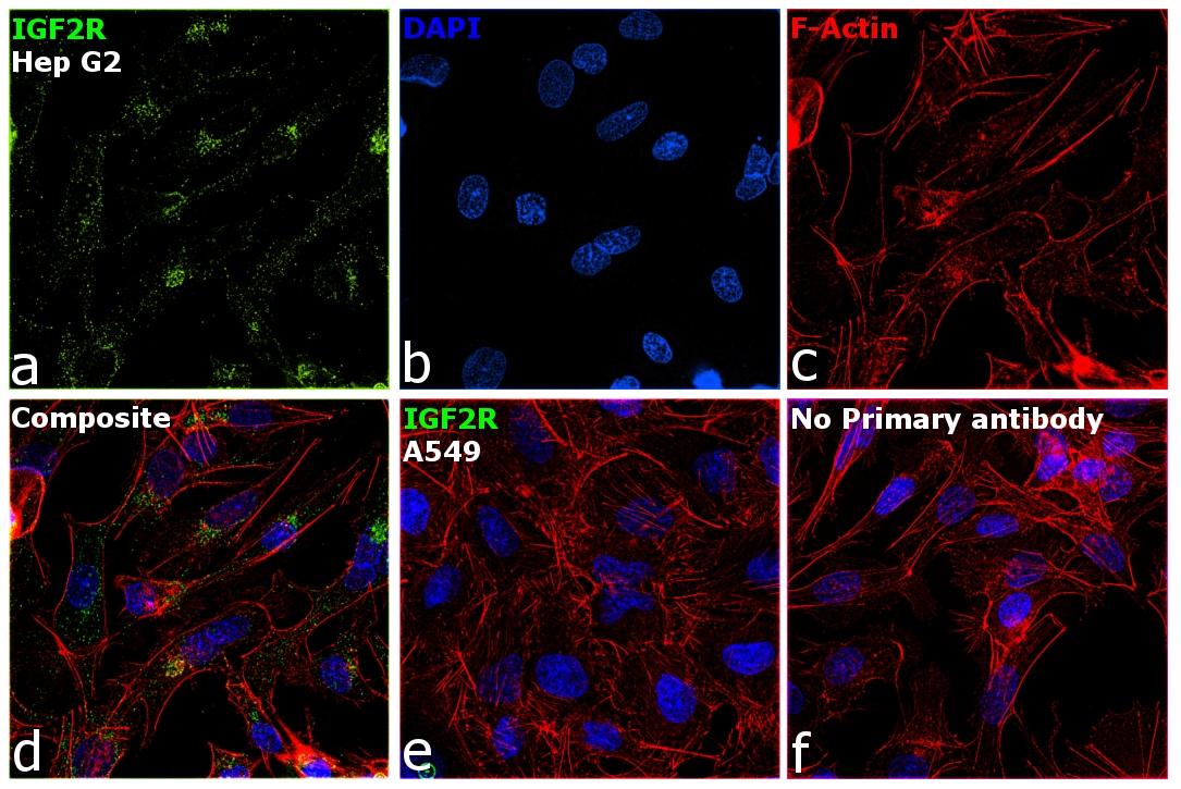 IGF2R Antibody in Relative expression