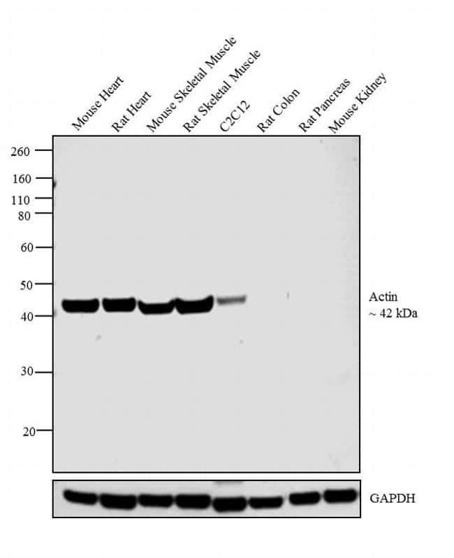 Actin Muscle Antibody in Relative expression