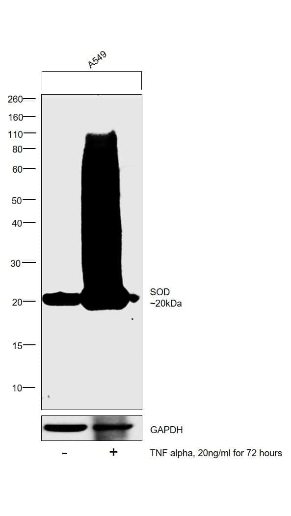 SOD2 Antibody in Cell treatment