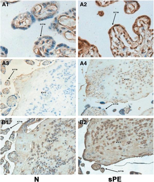 HLA-G Antibody