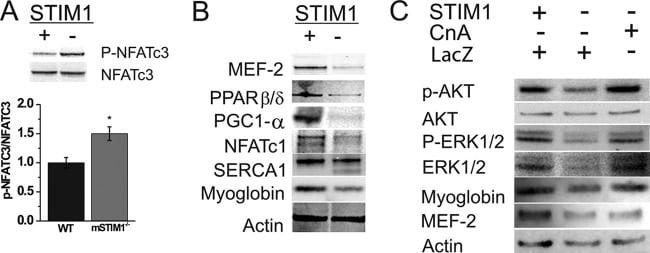 STIM1 Antibody
