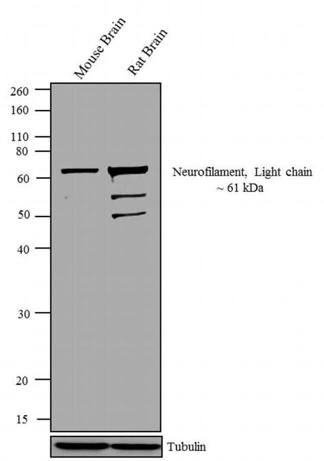 NEFL Antibody in Western Blot (WB)