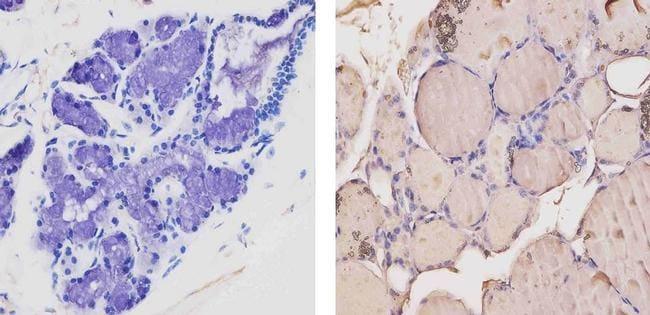 THRA/THRB Antibody in Immunohistochemistry (Paraffin) (IHC (P))