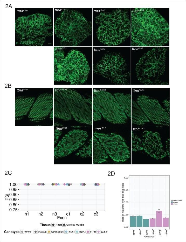 Sarcomeric alpha Actinin Antibody in Immunohistochemistry (IHC)