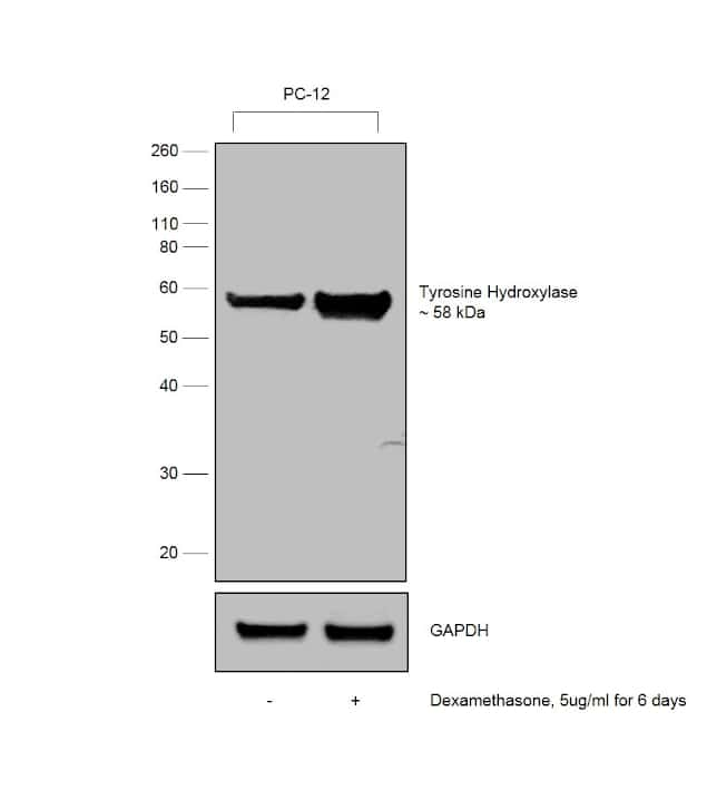 Tyrosine Hydroxylase Antibody in Cell treatment