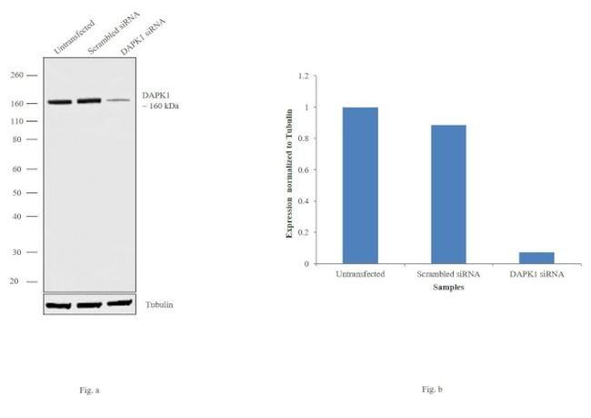 DAPK1 Antibody in Western Blot (WB)