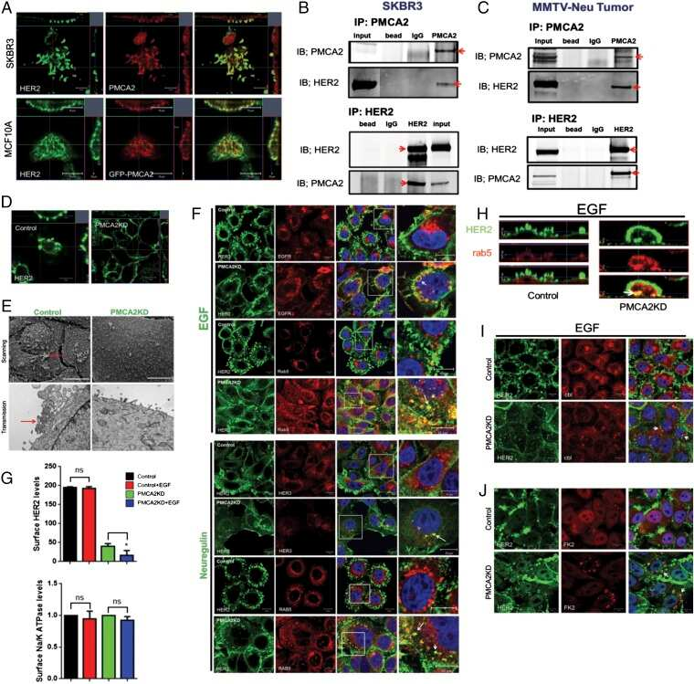 PMCA2 ATPase Antibody