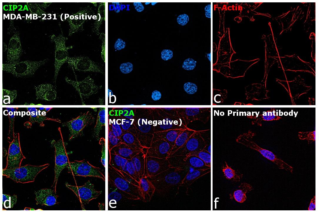CIP2A Antibody in Immunocytochemistry (ICC)