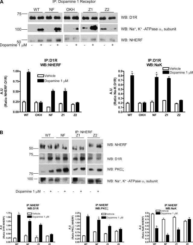 DRD1 Antibody