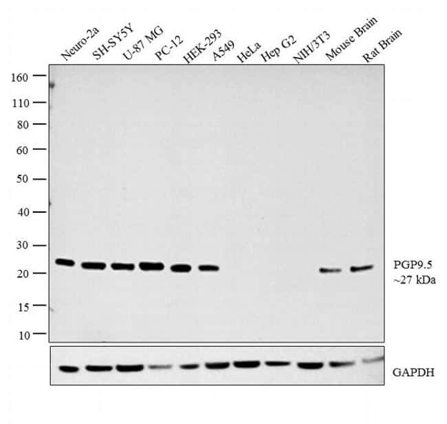PGP9.5 Antibody in Relative expression