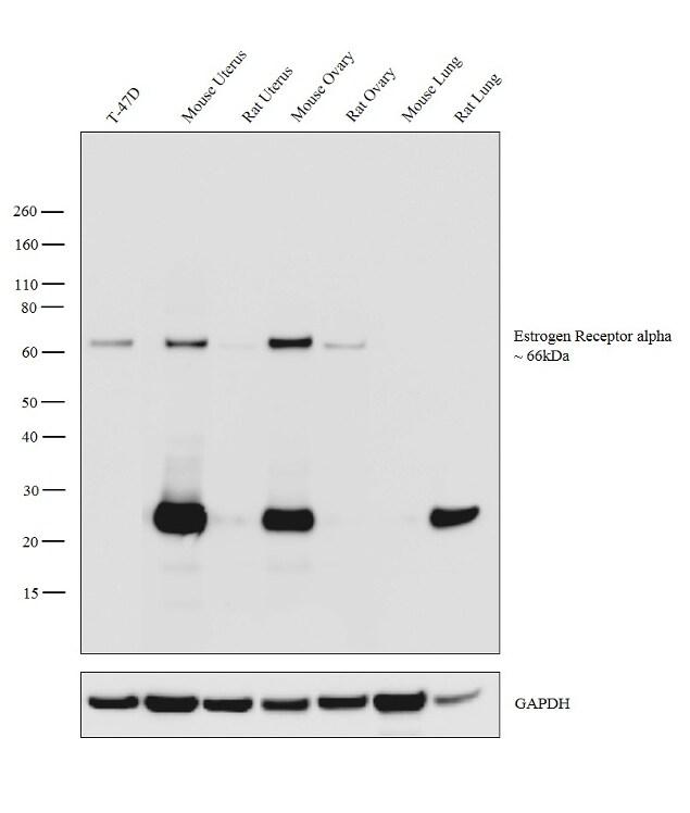 Estrogen Receptor alpha Antibody in Relative expression