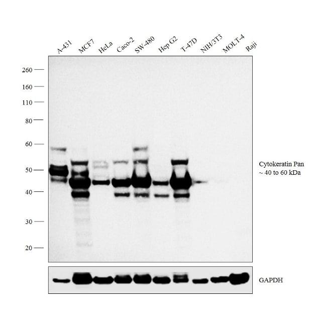 Cytokeratin Pan Type I/II Antibody in Relative expression