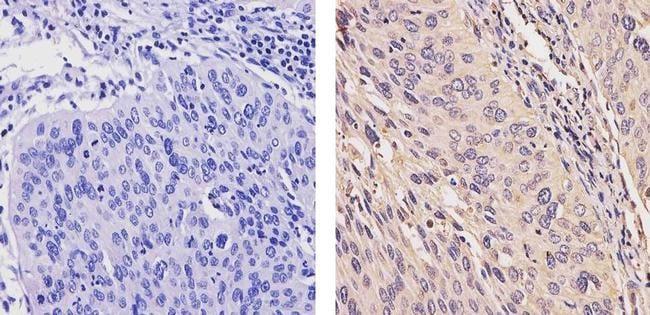 ErbB4 Antibody in Immunohistochemistry (Paraffin) (IHC (P))