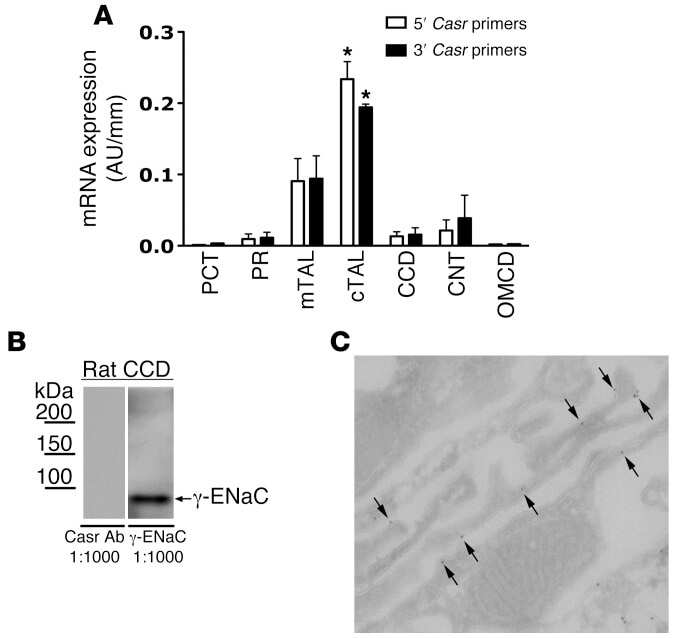 Calcium Sensing Receptor Antibody