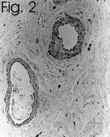 Endothelin 1 Antibody in Immunohistochemistry (IHC)