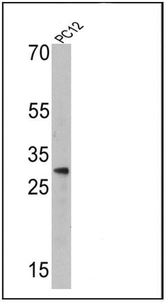Endothelin 1 Antibody in Western Blot (WB)