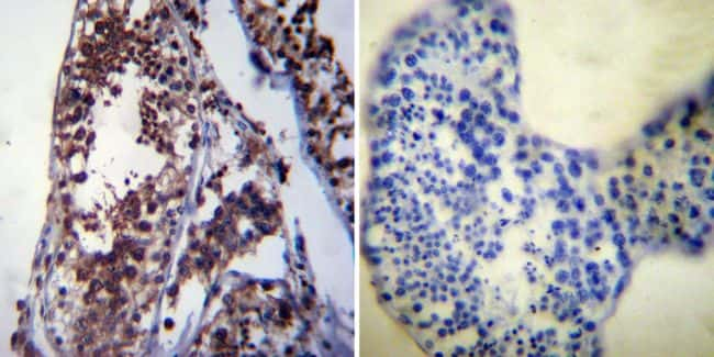 HSP70 Antibody in Immunohistochemistry (IHC)