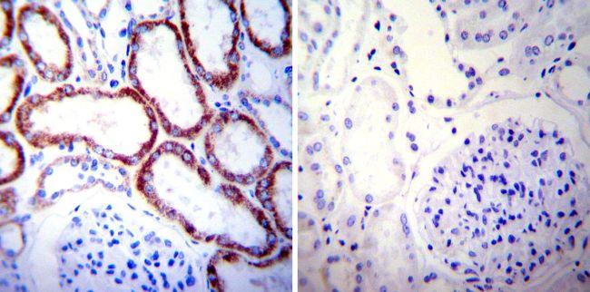 HSP60 Antibody in Immunohistochemistry (IHC)