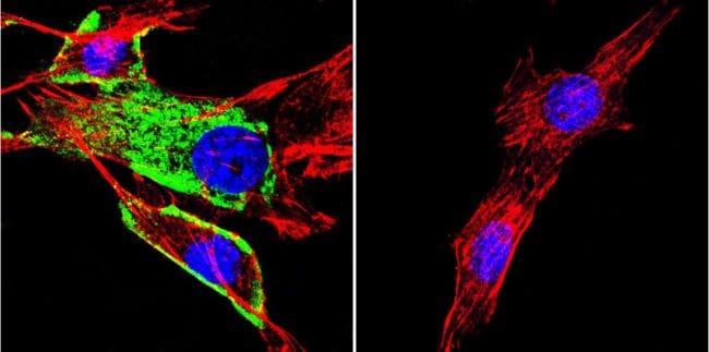 HSC70 Antibody in Immunofluorescence (IF)