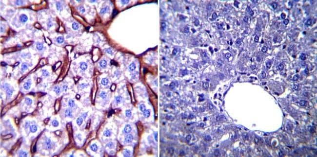GRP94 Antibody in Immunohistochemistry (Paraffin) (IHC (P))
