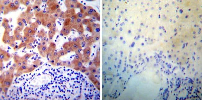 PDI Antibody in Immunohistochemistry (IHC)