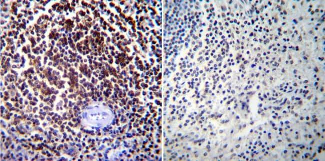 NFATC1 Antibody in Immunohistochemistry (IHC)
