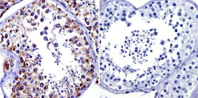 mtHSP70 Antibody in Immunohistochemistry (IHC)