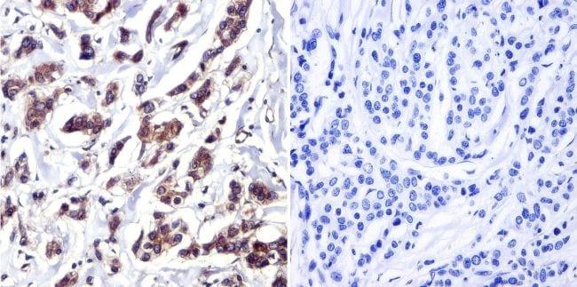 Cdc37 Antibody in Immunohistochemistry (IHC)
