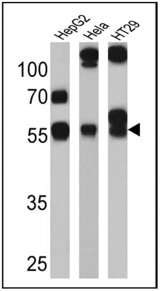 CYP3A7 Antibody in Western Blot (WB)