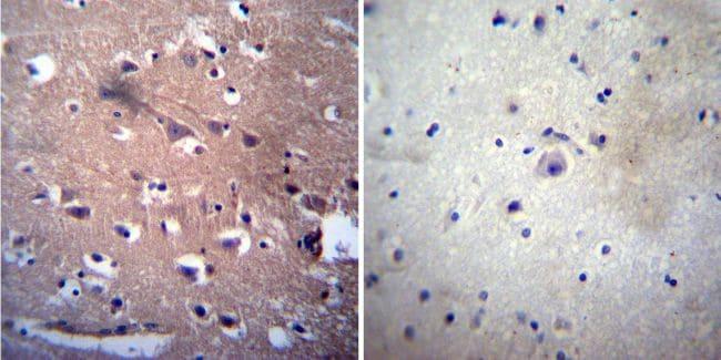Acetylcholinesterase Antibody in Immunohistochemistry (IHC)