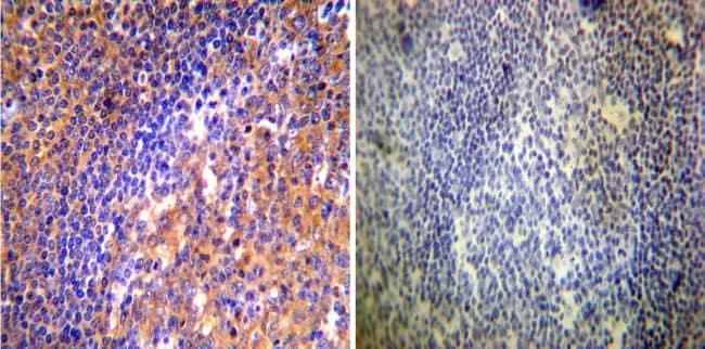 ARF1/ARF3/ARF5/ARF6 Antibody in Immunohistochemistry (IHC)