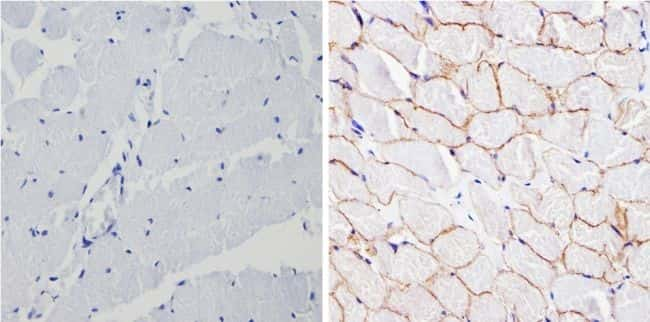 SPTBN1 Antibody in Immunohistochemistry (Paraffin) (IHC (P))