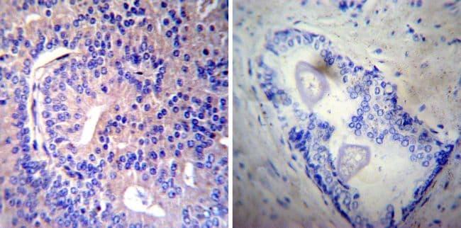 RAB9 Antibody in Immunohistochemistry (IHC)