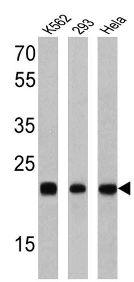 RAB9 Antibody in Western Blot (WB)